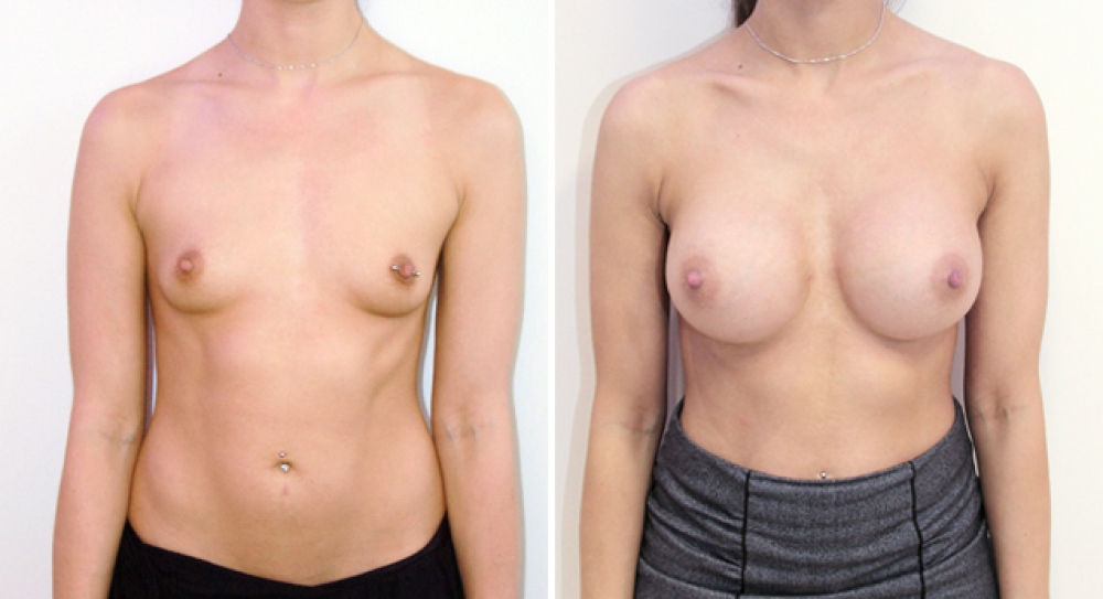 Natural style breast augmentation by Dr Miroshnik using 460g, round style implants, dual-plane placement
