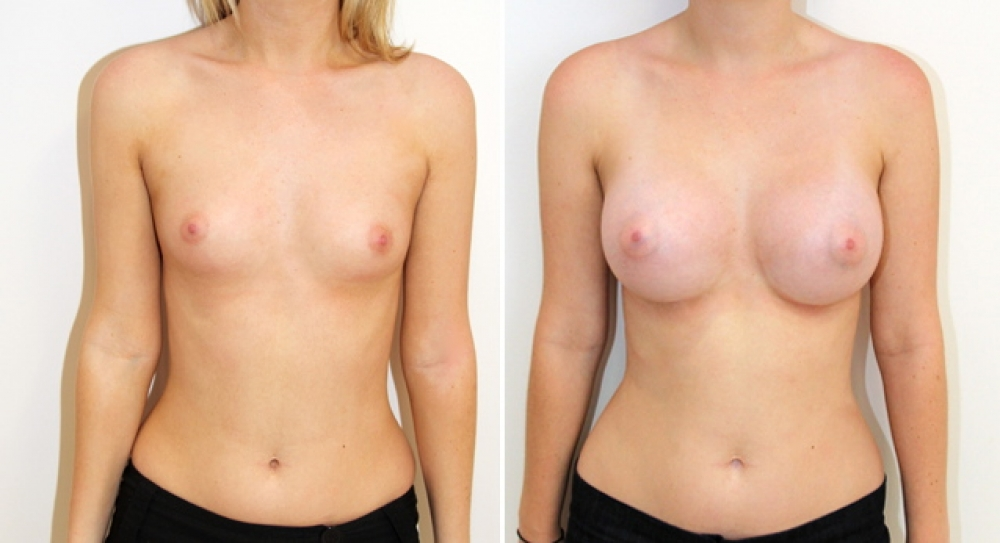 Natural style breast augmentation by Dr Miroshnik using 390g, high profile, round implants, dual plane placement