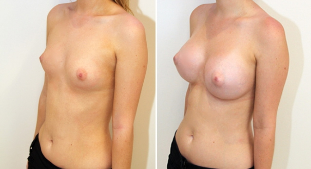 Natural style breast augmentation by Dr Miroshnik using 390g, high profile, round implants, dual plane placement.