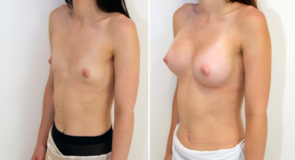 Natural style breast augmentation by Dr Miroshnik using 255g anatomical (teardrop) implants, submuscular placement