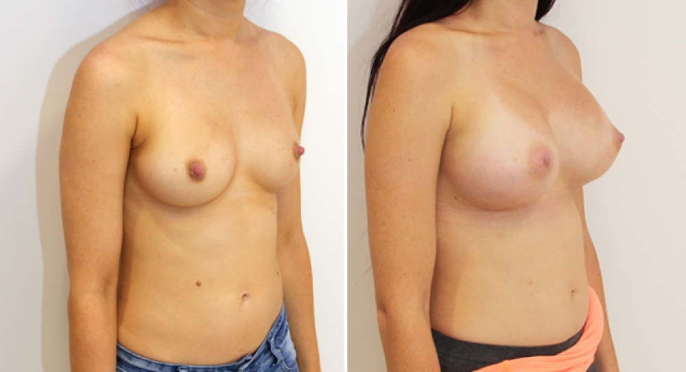 Enhanced style augmentation created by Dr Miroshnik with 470g, extra high profile anatomical implants.