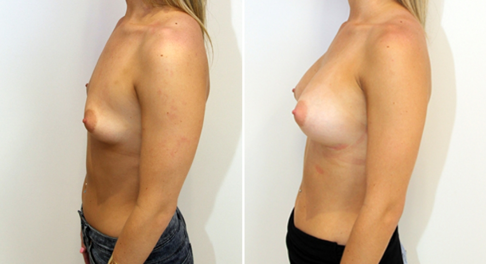Breast augmentation by Dr Miroshnik to correct droop using 360g, anatomical implants, dual-plane positioned