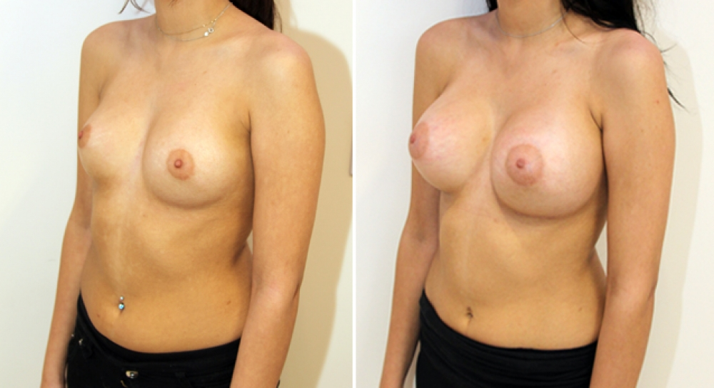 Enhanced look created here with the use of high profile, 345g round style implants.