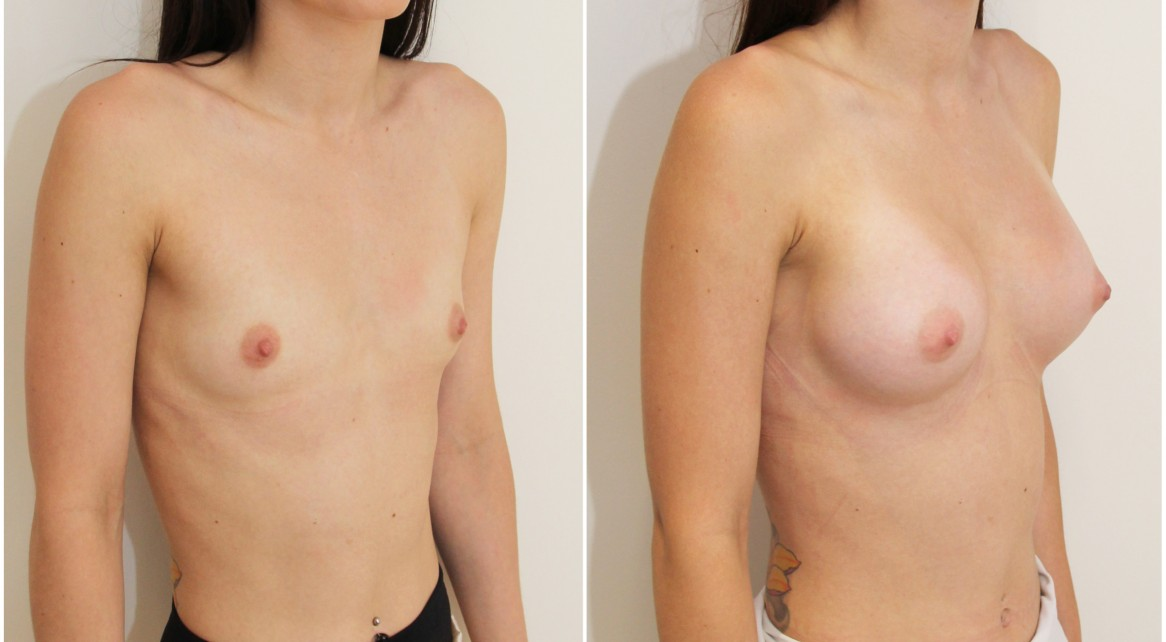 Anatomical implants combined with dual-plane positioning is Dr M's favourite way of creating naturally shaped, youthful breasts when starting with almost nothing (AA cup).