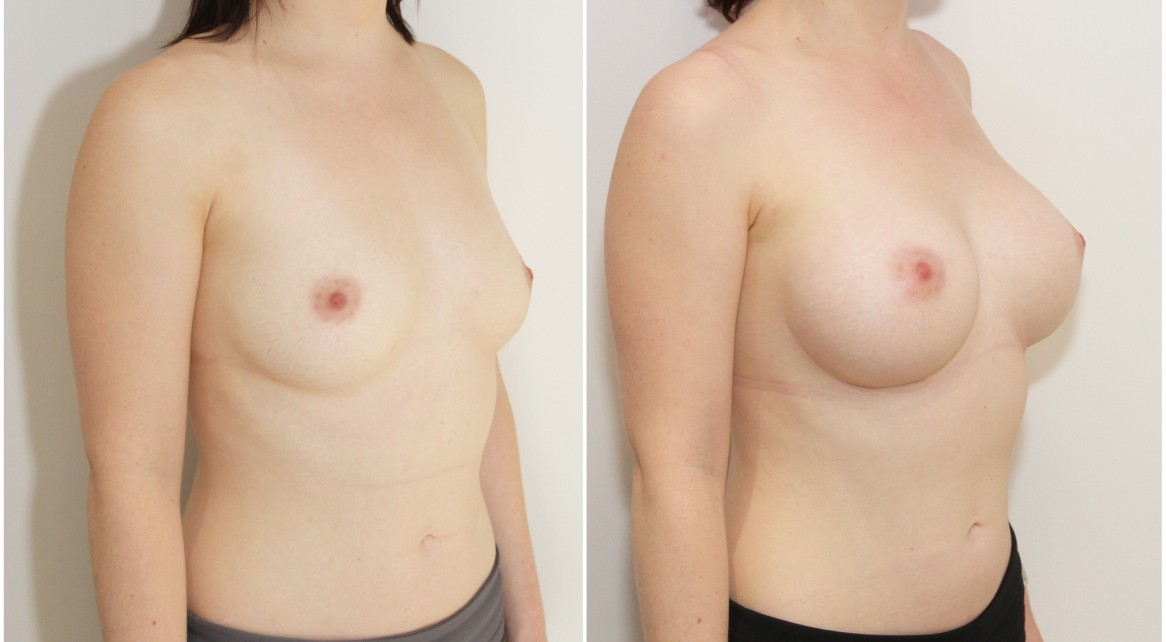 Natural style augmentation with 275g moderate profile, round style implants, dual-plane positioned.