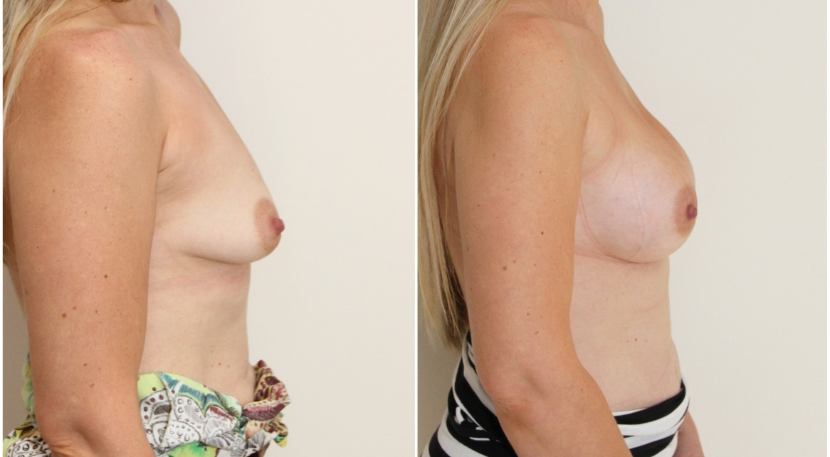 Droop correction with subfascially positioned 345g high profile anatomical implants.