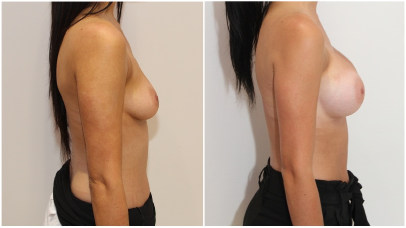 Enhanced-style look achieved by Dr Miroshnik with the use of 375g, high profile, anatomical implants