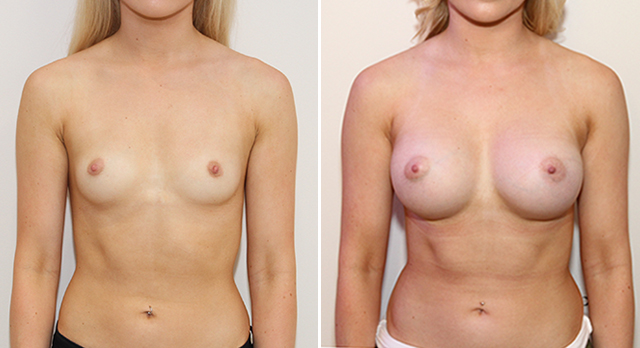 Natural style augmentation with round, 390g, high profile implants, dual plane 2 positioned.