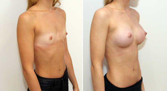 Natural style augmentation on a patient with AA cup breasts using 255g, anatomical memory gel implants, dual-plane positioned.