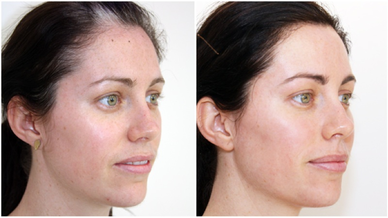 Optimised light treatments have been used over the full face to decrease the signs of sun damage and to even the skin tone, the patient recieved 3 treatments in total