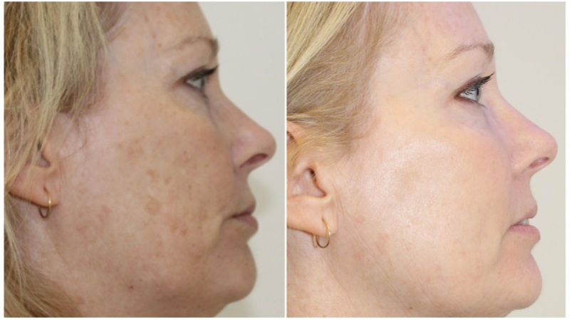A course of 3 optimised light treatments for age spots, pigmentation and vascular lesions