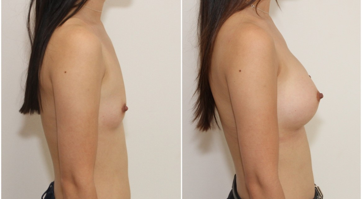 New Study with Good News- Breast Reconstruction with.