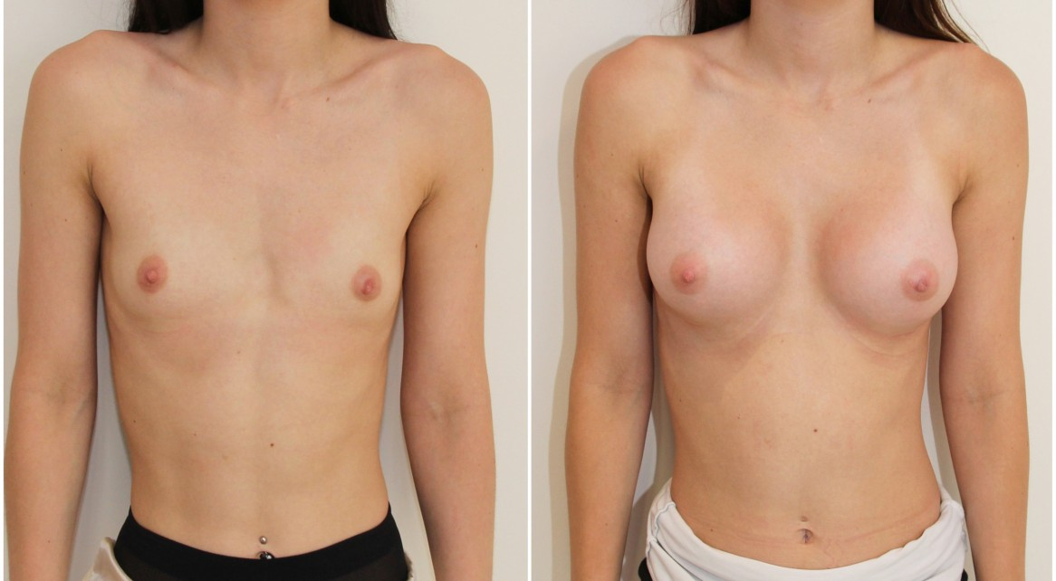 AA cup, minimal breast volume to start with, shape created with 255cc CPG memory gel, dual plane positioned anatomical implants.